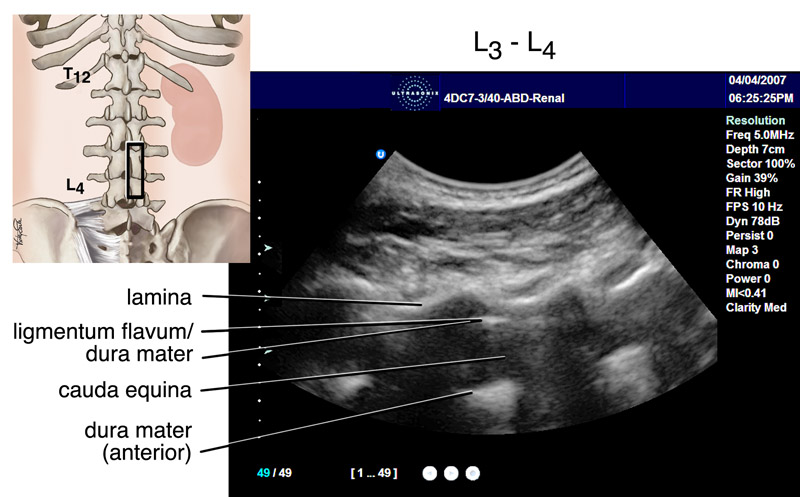 Ultrasound Transducer for Epidural Needle Guidance | uilo.ubc.ca